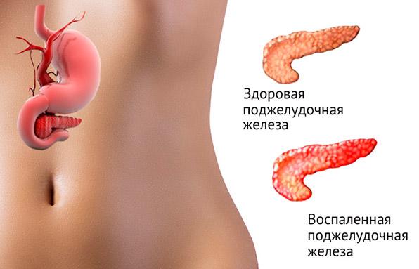причины индуративного панкреатита