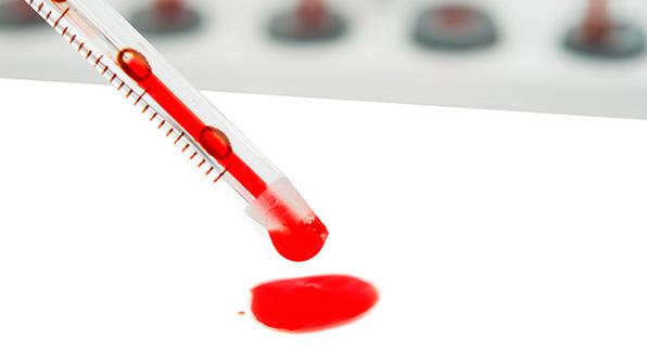 анализ крови на амилазу