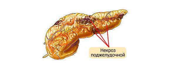 некроз тканей поджелудочной железы