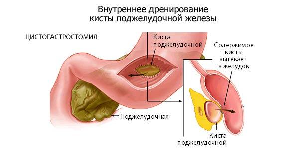 хирургия при кисте