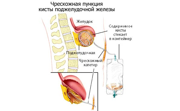 операция на кисте