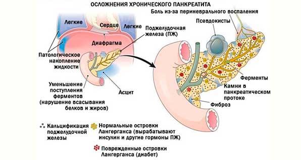 осложнения в поджелудочной железе