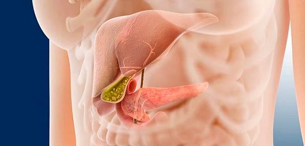 панкреатит у человека