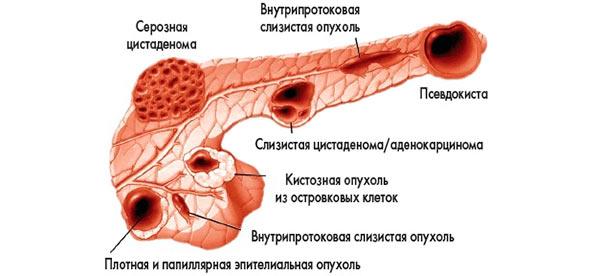 псевдокиста поджелудочной железы