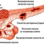 опухоли поджелудочной железы