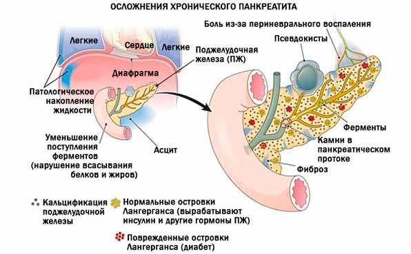 осложнения панкреатита