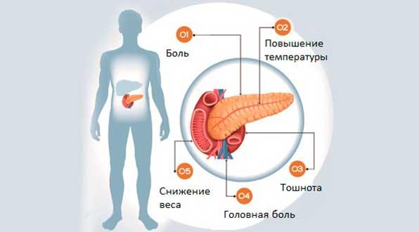Как лечить нарушения функций поджелудочной железы thumbnail