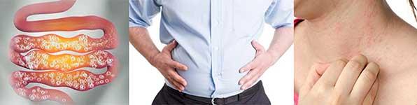 аллергия и проблемы с пищеварением