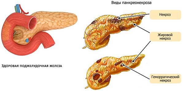 поджелудочная железа с некрозом