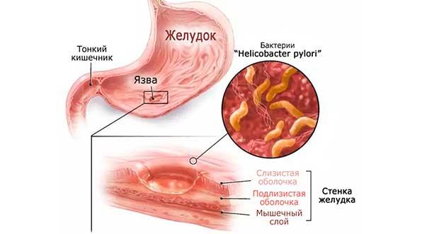 поражение стенок желудка и кишечника