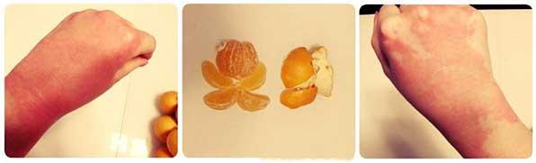 Проявление аллергии на цитрусовые
