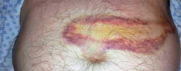 синяк на животе при заболевании поджелудочной железы