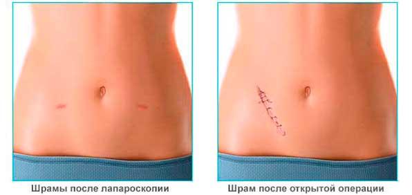 шрамы после лапароскопии и обычной операции