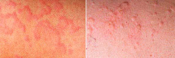 Аллергическая реакция на мидии