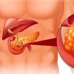 фиброз поджелудочной железы