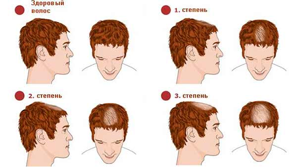 Стадии выпадения волос на голове