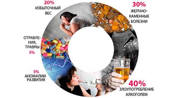 Причины заболеваний поджелудочной