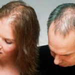 Проявление алопеции у мужчин и женщин