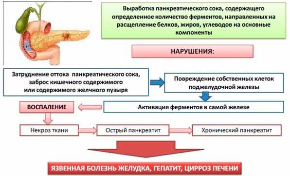 Схема развития панкреатита