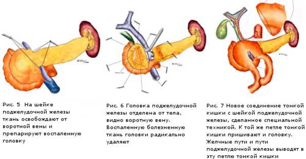 Резекция головки поджелудочной железы