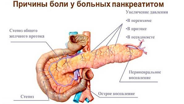 Причины боли у людей с панкреатитом