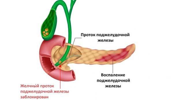 Заблокированный желчный поток при панкреатите