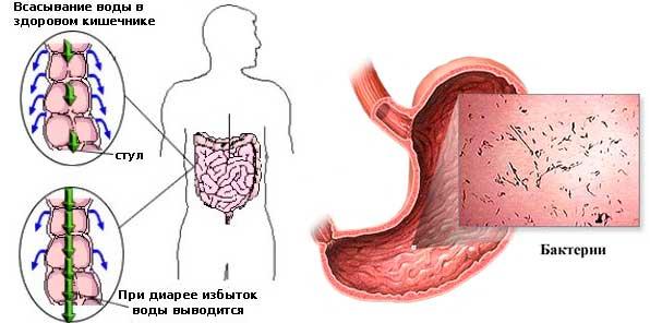 Понос и бактерии в желудке