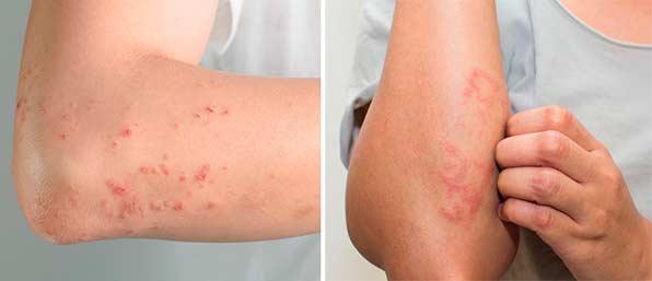 Аллергия и сыпь на коже