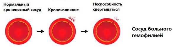 Сосуды при гемофилии