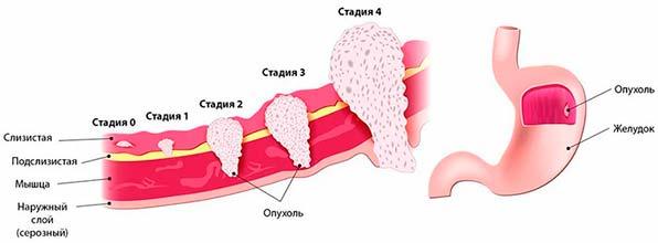 Опухоль в желудке при гастрите